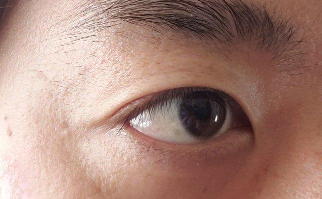 アイアクトは眼瞼痙攣に効果ないのか検証した結果